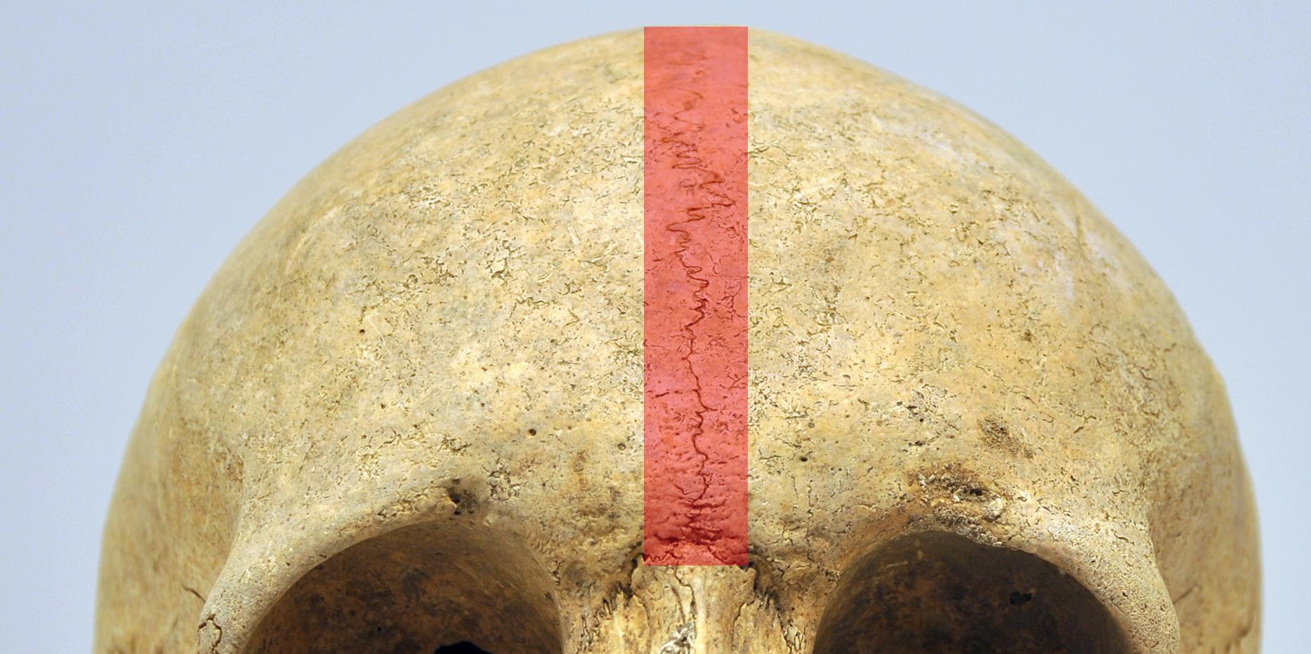 Crane suture metopique Foto CC